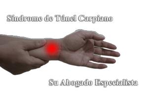 Abogados Especialistas en Enfermedades incapacitantes sindrome tunel carpiano